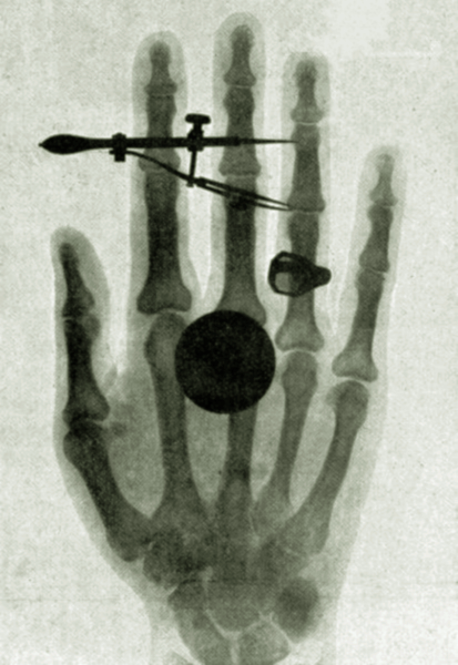 wilhelm-roentgens-x-ray-photograph-of-his-wifes-hand1